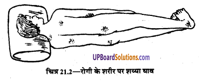 UP Board Solutions for Class 9 Home Science Chapter 21 रोगी का बिस्तर
